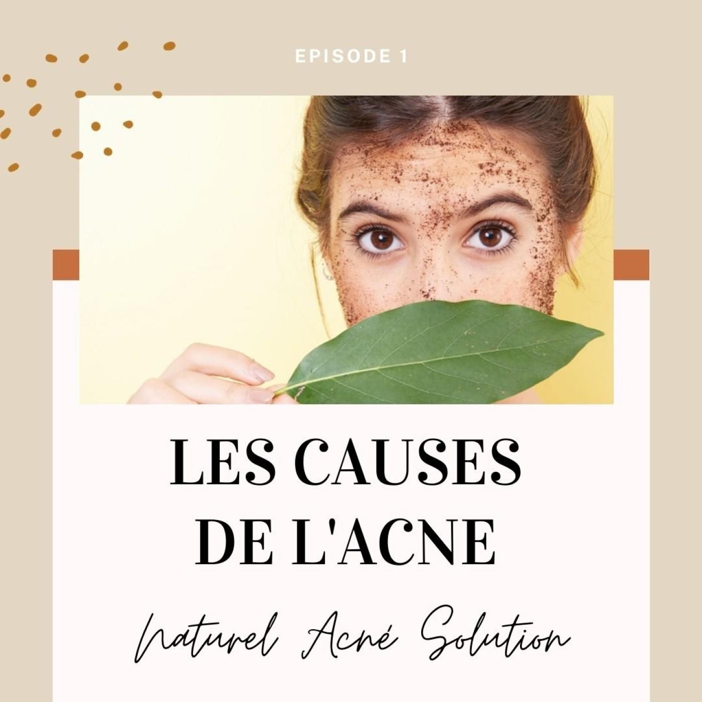 Episode 1 - Les causes de l'acné